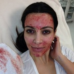 Kim Kardashian tries the Vampire Facelift on live TV